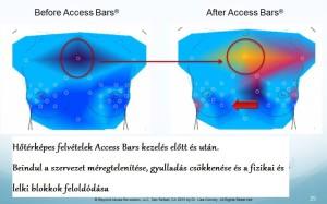 Access_Bars_hatása_hőtérképes_felvétel