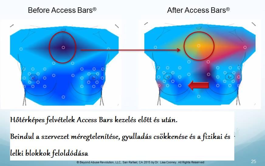 """Képtalálat a következőre: """"access bars"""""""